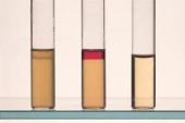 Abb. zeigt v.l. Klebsiella pneumoniae, E. coli, Negativ-Kontrolle