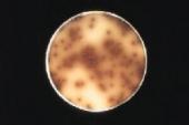 Abb.: L. monocytogenes auf Oxford-Agar (Bild aus Merck Manual)