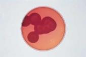 Abb. zeigt Bacillus cereus- und Staphylococcus aureus-Kolonien (2 St.) auf MYP-Agar (aus Merck-Manual)