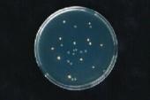 Bilder: Ausstrich E. coli O157H7, E. coli, Serratia marcescens, im UV-Licht bzw. Tageslicht: O157 fluoresziert (Bild 2)